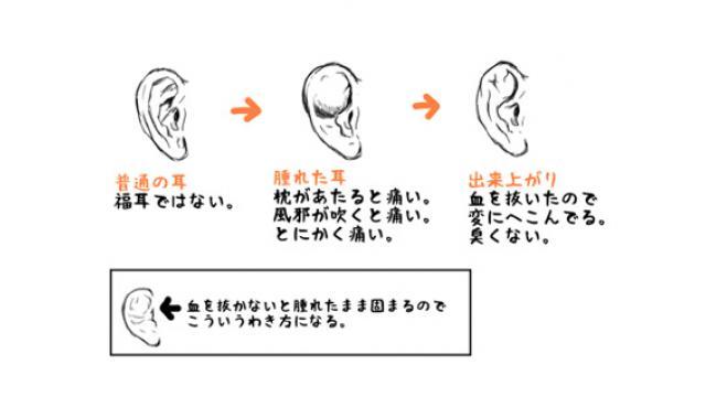 柔道、レスリング……わいた耳の話■二階堂綾乃