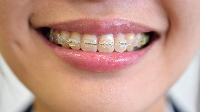 「歯」の10大新常識