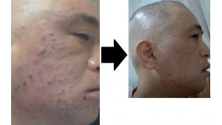 簡単【100ニキビ】治し方//Easy [100 acne] How to cure