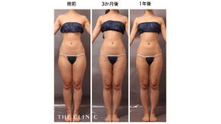 吸引 脂肪 脂肪吸引モニター