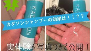 【口コミ】カダソンシャンプーを使ったが抜け毛に効かない?成分の効果で脂漏性皮膚炎、フケに効くのかを解析!