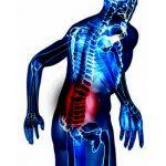 脱出型椎間板ヘルニアP